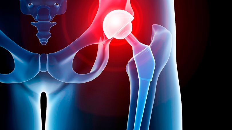 prod-human-hip-replacement-illustration-e1498989624192.jpg